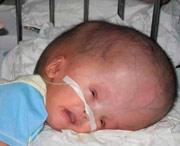 неизученные причины развития опухоли