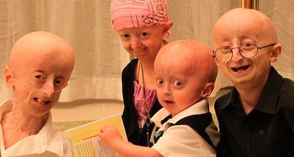 как выглядят люди с синдром Тюрко