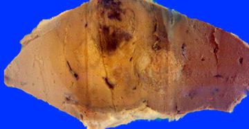 метастазы в желудке появляются на последней стадии рака других органов