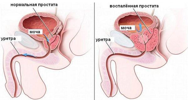 причина заболевания аденомой предстательной железы