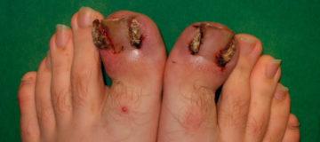 меланома может образоваться на больших пальцах ноги