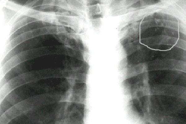 рентген опухоли на ранней стадии