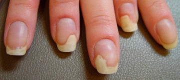 чем опасна меланома ногтя