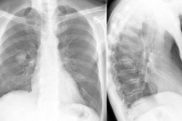 виды рака легких на рентгене