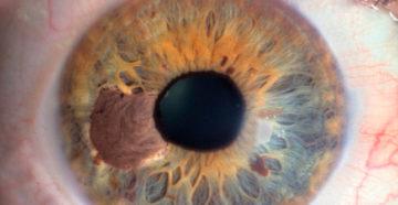 как выглядит по микроскопом меланома глаза