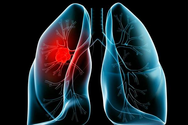 виды рентгенологического обследования
