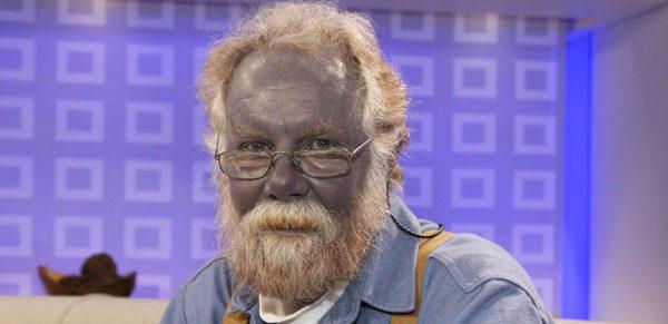 изменение цвета кожи