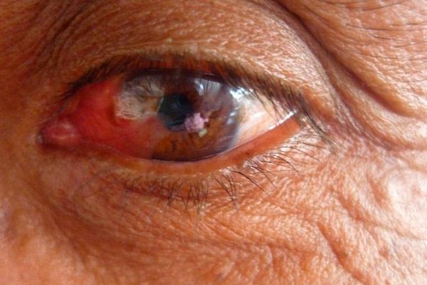 поражение сетчатки глаза
