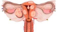 интерстициосубсерозная миома выступает за тело матки