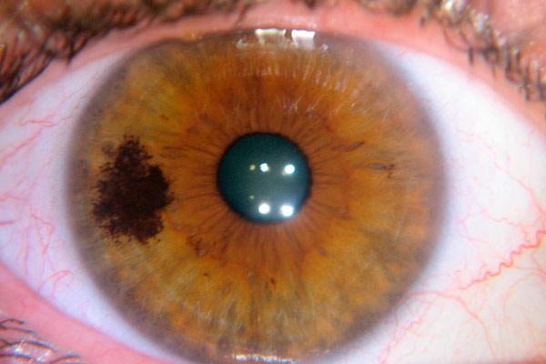 опухоль хориоидеи глаза
