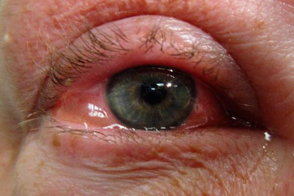 увеальная опухоль глаза