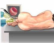 диагностика прямой кишки