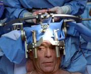 методы удаления опухоли мозга