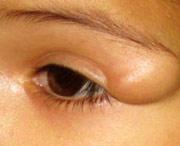 большая липома над глазом