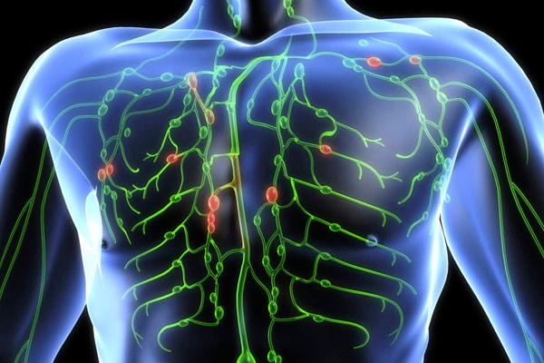 в крупноклеточная лимфома в грудной клетке