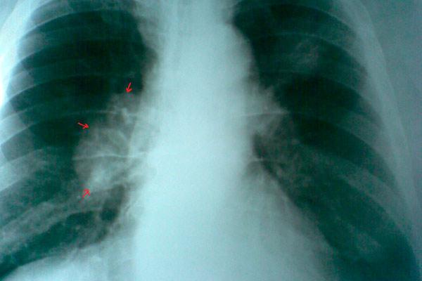 Периферический рак на рентгене