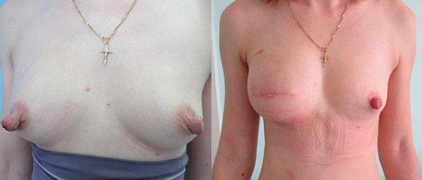 удаление части молочной железы