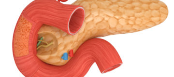 рак двенадцатиперстной кишки делится на несколько видов