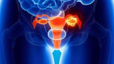 гранулезоклеточная опухоль может быть злокачественной