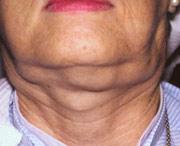 лимфома челюстно-лицевых узлов