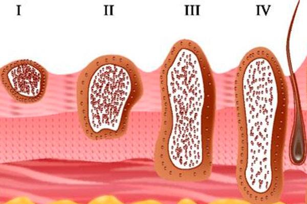 четыре стадии рака кожи