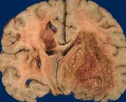 вторичные очаги в мозг