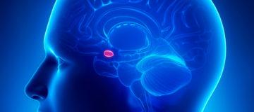 гормонозависимые опухоли у женщин снимок