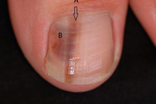 как выглядит рак на ногте
