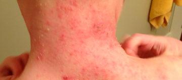 лимфома мантийной зоны на шее