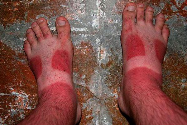 фото ожога на ногах