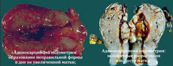 аденокарцинома на удаленном органе