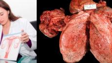 как выглядит злокачественная опухоль матки в разрезе