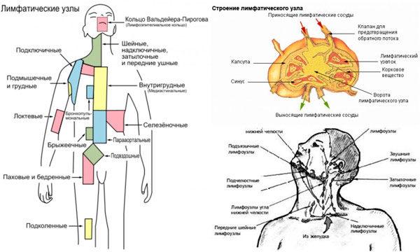 метастазы от рака легкого