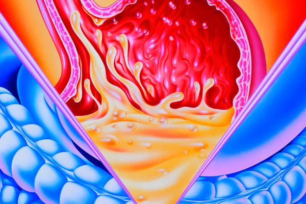 последствия удаления желудка