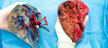 лечение цирроза печени у женщин пенсионного возраста