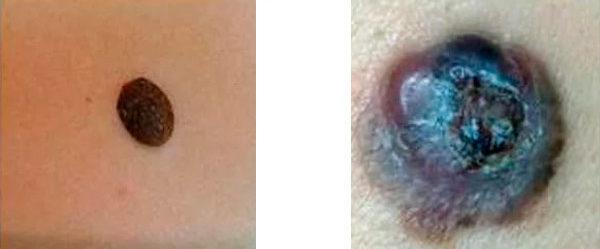 отличие рака кожи от невуса