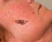 раковое новообразование на щеке