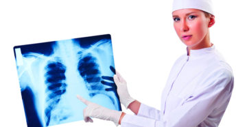 плоскоклеточный рак легкого требует оперативного вмешательства