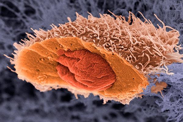 светлоклеточная аденокарцинома на гистологии