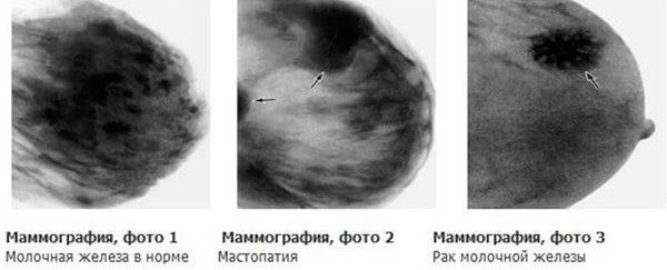 диагностирование опухоли груди