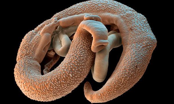 клиника при паразитарных инфекциях