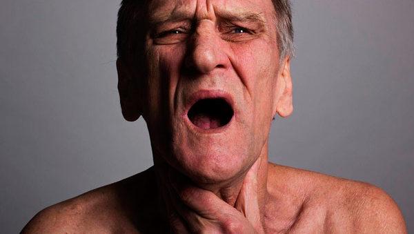 опухоль сдавливает дыхательные пути