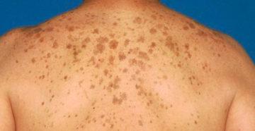 меланома кожи спины возникает очень часто