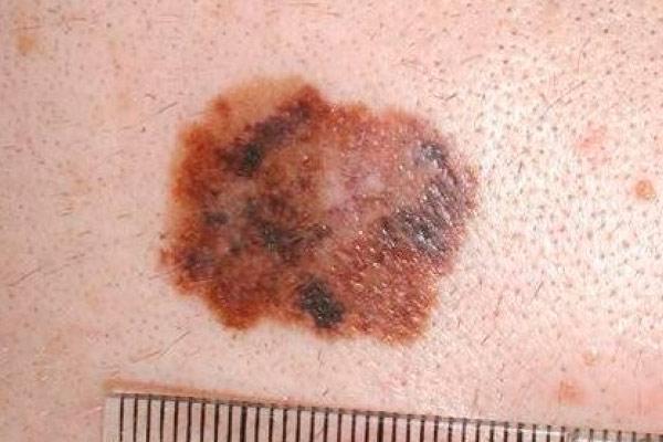 визуальная диагностика меланомы 2 стадии