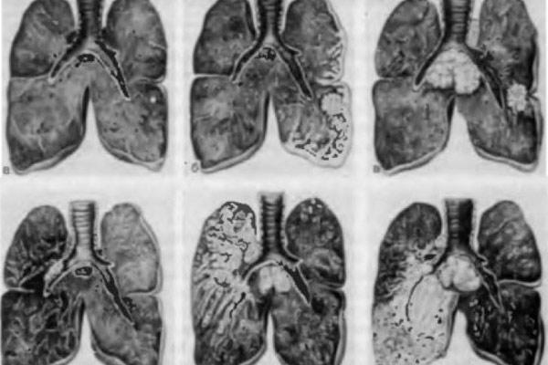 причиной является рак легких