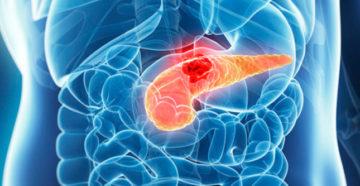 какие симптомы характерны для начинающегося рака поджелудочной железы