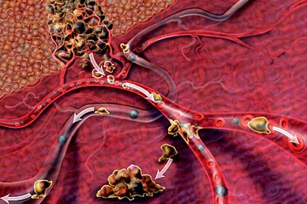 опухоль распространяется в яички