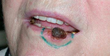 плоскоклеточный рак нижней губы