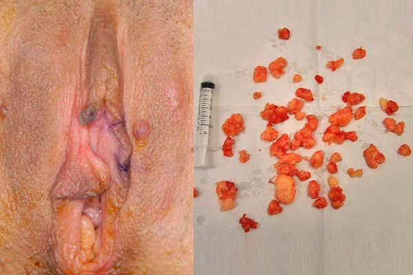 фото жировика на половых губах