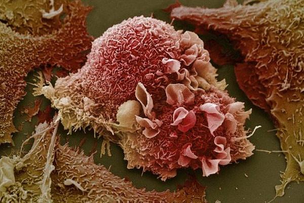 фото частицы рака легких